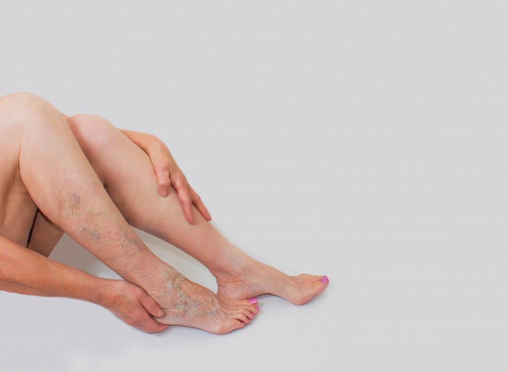 a visszereket zümmögő lábak
